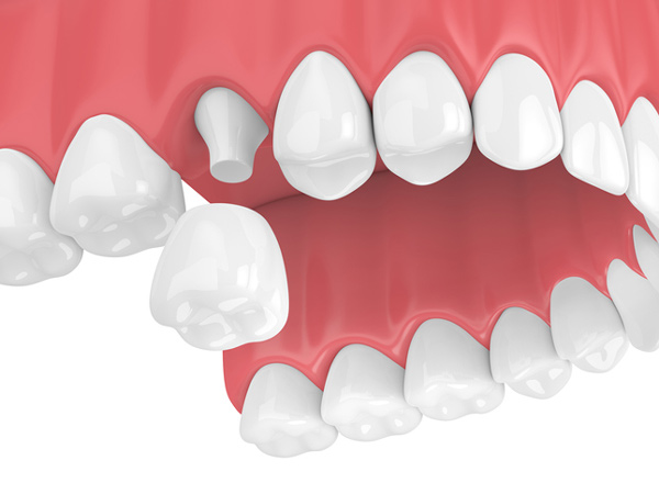 Rendering of a jaw with a porcelain dental crown at McDonald DDS in Plano, TX